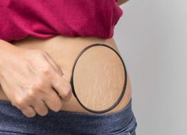 Effective Remedies To Help You Get Rid of Stretch Marks