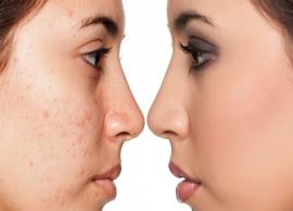 5 Home Remedies To Get Rid of Stubborn Acne Marks