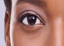 5 Home Remedies To Get Rid of Stye in Eyes