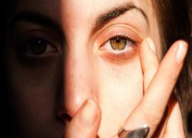 5 Quick Home Remedies To Treat Sunburn Eyes
