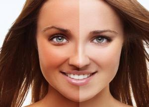 Apply These Simple Beauty Tips to Remove Sun Tan Naturally