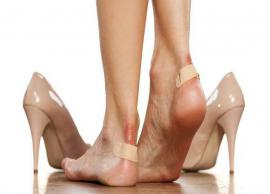 5 Home Remedies To Heal Blisters
