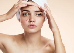 5 Ways To Treat Acne Naturally