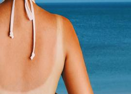 7 Simple Hacks To Treat Sunburn The Natural Way