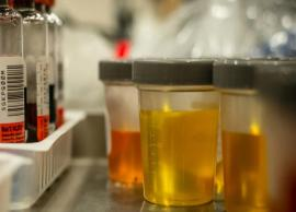 Few Things That Your Urine Tell About You
