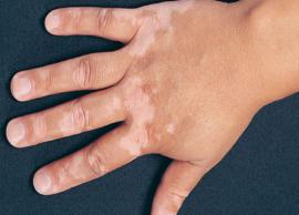 5 Home Remedies To Treat White Spots on Skin