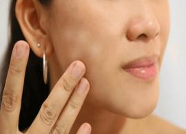 5 Home Remedies To Get Rid of White Spots