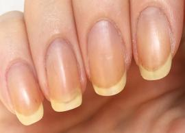 Some Great Home Remedies To Treat Yellow Nails