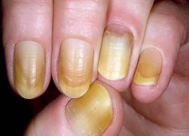 6 Effective Home Remedies To Treat Yellow Nails