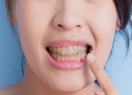 5 Natural Ways To Treat Yellow Teeth