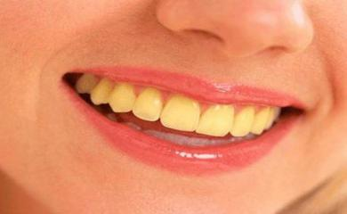 4 Tips to get rid of Yellow teeth caused by