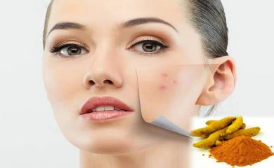 Turmeric Formula The Best way to fight Acne