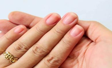5 Ways To Treat Discolored Nails