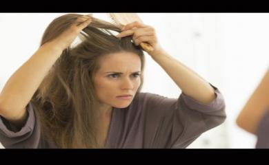 Step By Step Guide To Avoid Dandruff During Winters
