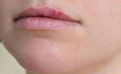 Know The Causes and Treatment of Herpes