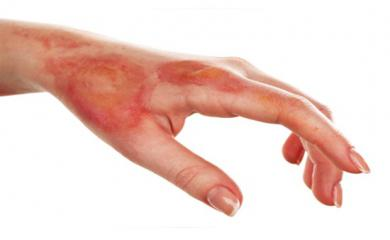 Treat Day to Day Burns With These Home Remedies