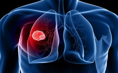 5 Signs of Lung Cancer That Should not Be Ignored