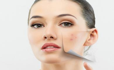 5 Natural Ways To Get Rid of Pigmentation on Skin