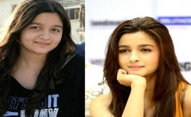 Want Slim face like Alia Bhatt, Try These Yoga Postures