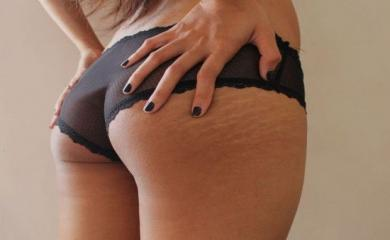 Easiest Ways To Get Rid of Stretch Marks