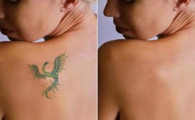 Want To Get Rid of laser Tattoo? Here are Few Easy Ways