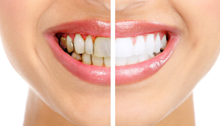 5 Home Remedies To Remove Stains From Teeth