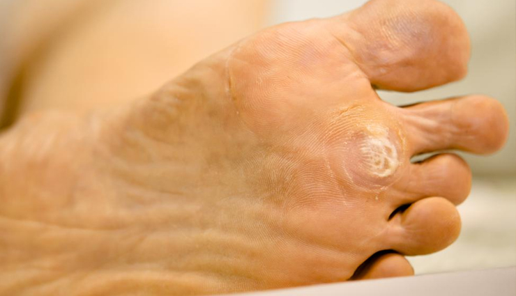 11 Remedies For Warts That Can Help To Cure Them