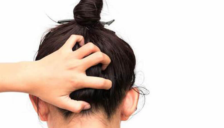 Here are Some Common Reasons For Experiencing An Itchy Scalp