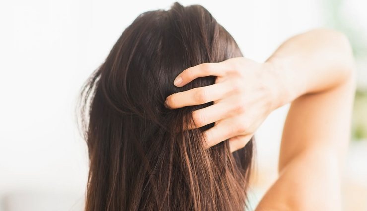 common reasons for an itchy scalp,common reasons for dandruff,hair care tips,scalp care tips,beauty tips,summer tips