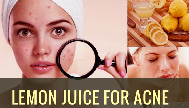 6 Ways To Use Lemon Juice To Get Rid of Acne Scars