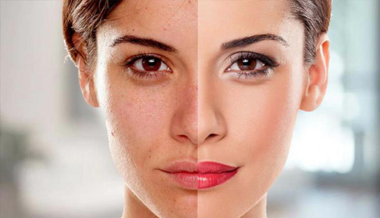 11 Remedies That Will Help You Lighten Dark Skin