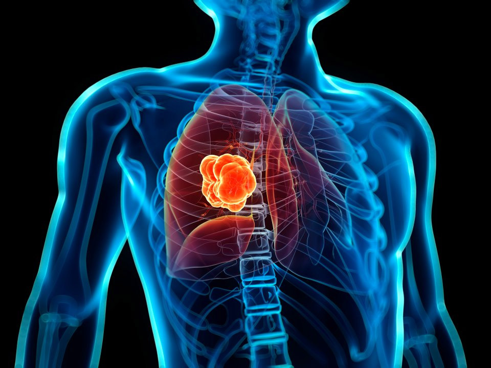 signs of lung cancer,lung cancer,signs that should not be ignored,Health tips