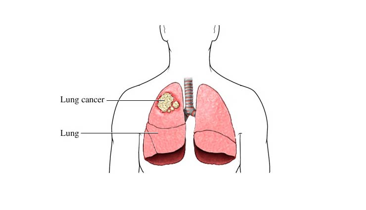 lung cancer,symptoms,lung cancer causes,lung cancer treatment,Health tips,healthy living