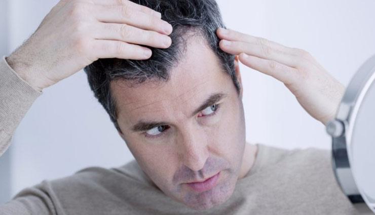 beauty tips,men hair,men hair falling,bad habits,care of hairs,remedies for hair fall ,ब्यूटी टिप्स, पुरुषो के बाल झड़ना, गलत आदतें, बालों की देखभाल, बालों के उपचार