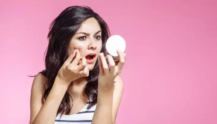Acne During Monsoon? Try Out These Simple Home Remedies