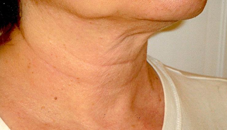 beauty tips,skin care tips,home remedies,neck wrinkles,wrinkles remedies ,ब्यूटी टिप्स, त्वचा की देखभाल, घरेलू नुस्खे, गर्दन की झुर्रिया, झुर्रिया का इलाज