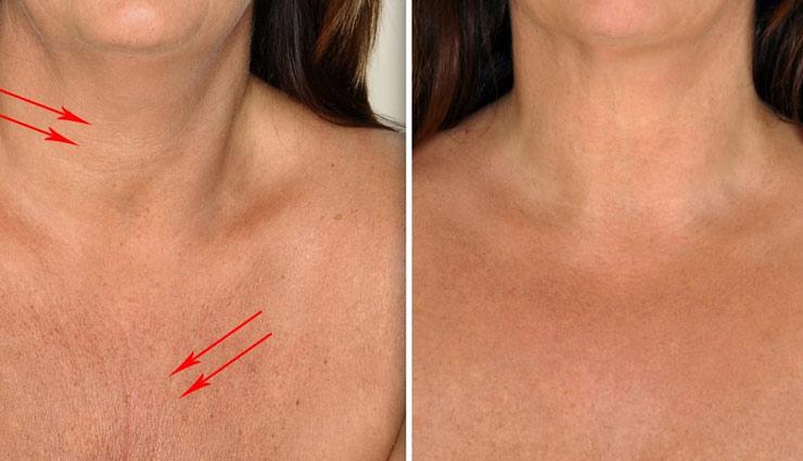 गर्दन में पड़ने वाली झुर्रियां घटा रही है आपकी सुंदरता, आजमाकर देखें ये असरदार ब्यूटी टिप्स