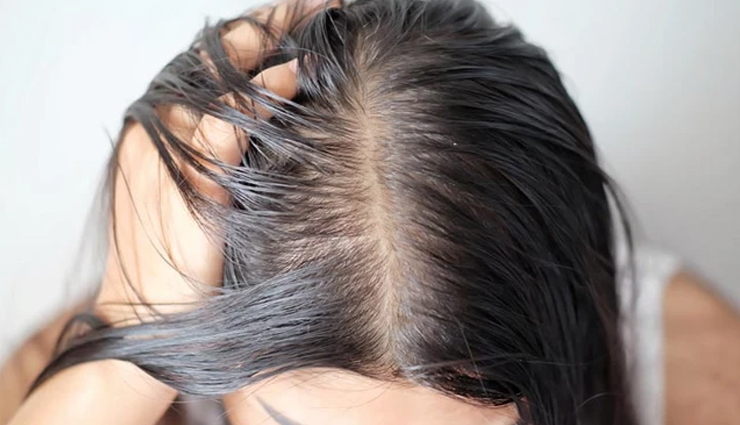 oiling your hair,mistakes while oiling your hair,scalp care tips,hair dryness,dandruff issue,oil care tips,beauty,beauty tips