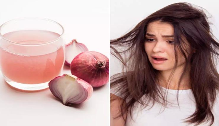 beauty tips,beauty tips in hindi,home remedies,itching scalp remedies ,ब्यूटी टिप्स, ब्यूटी टिप्स हिंदी में, घरेलू नुस्खें, बालों में खुजली
