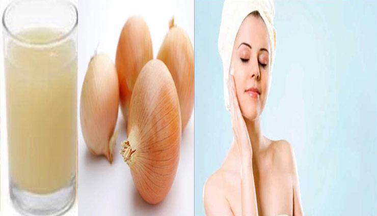 beauty tips,onion juice benefits,skin care tips,blackheads,beautiful face,simple beauty tps ,प्याज का रस, ब्यूटी टिप्स, चहरे के दाग-धब्बे, चहरे की सुन्दरता, खूबसूरत चेहरा, मुंहासे