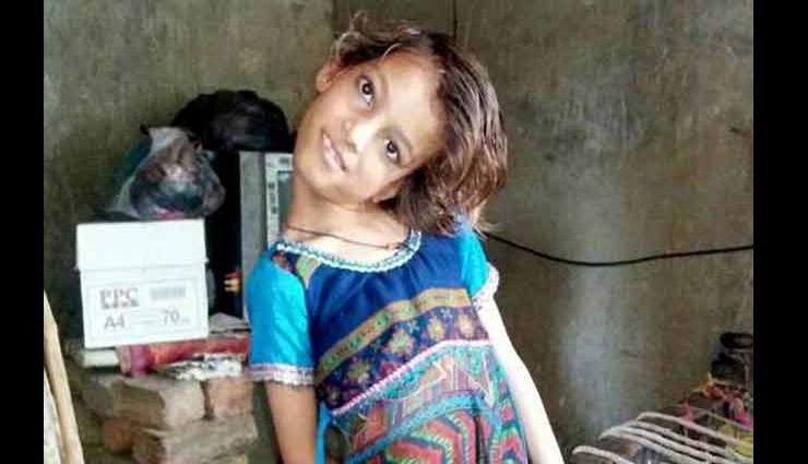 pakistan,weird story,girl head 180 degree angle ,पाकिस्तान,आफसीन,180 डिग्री घुमी हुई गर्दन