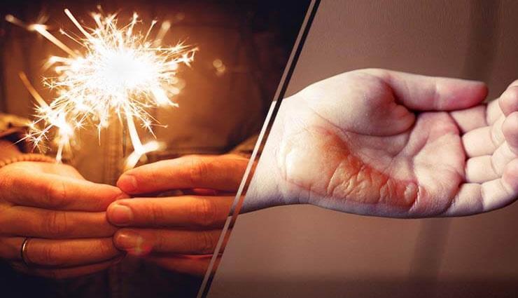 पटाखों की जलन ना पड़ जाए भारी, ले इन टिप्स की मदद