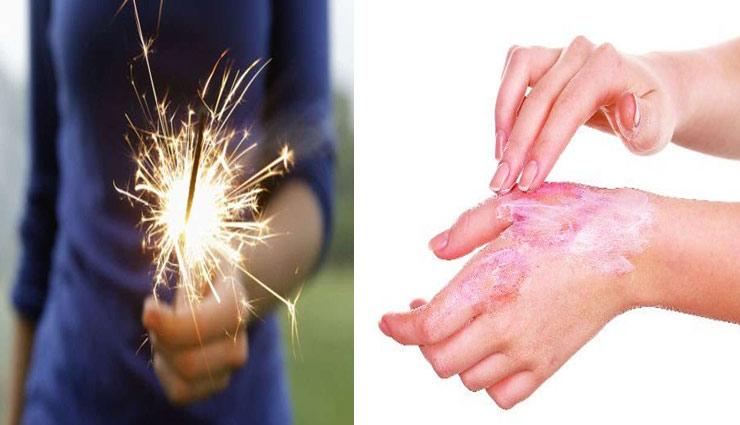 diwali special,Health tips,firecrackers,treatment,get relief from the pain,home remedies ,दिवाली स्पेशल, हेल्थ टिप्स, पटाखों से जलना, दर्द से छुटकारा, जलने पर इलाज, घरेलु नुस्खे