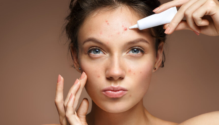This Trick Will Help You Get of Pimple Overnight