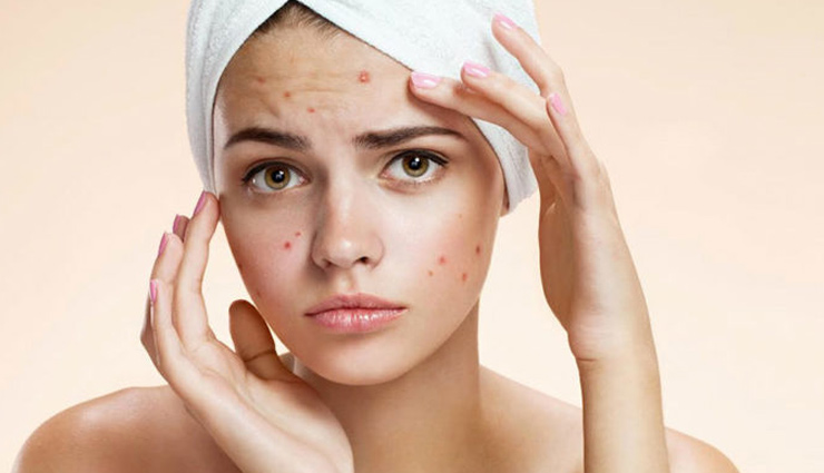5 Home Remedies To Get Rid of Pimples