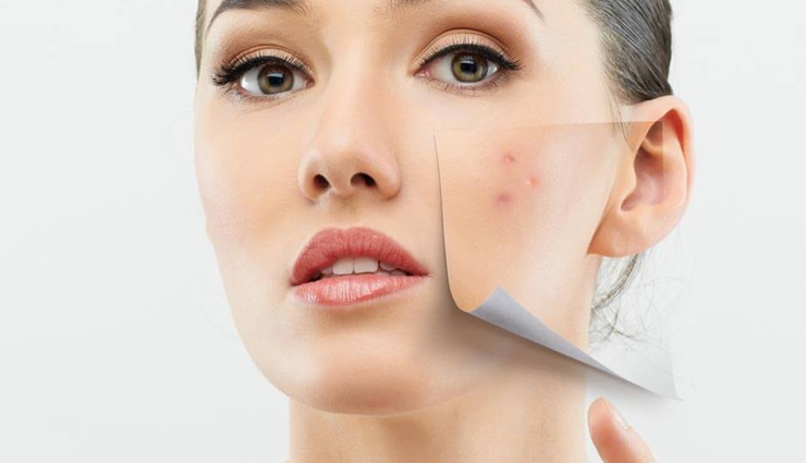 effective home remedies to treat pimples,ways to treat pimples,skin care tips,beauty tips,home remedies