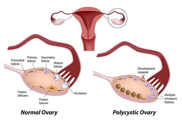 sara ali khan,pcos,polycystic ovary syndrome,Health,Health tips ,सारा अली खान,पॉलिसिस्टिक ओवरी सिंड्रोम