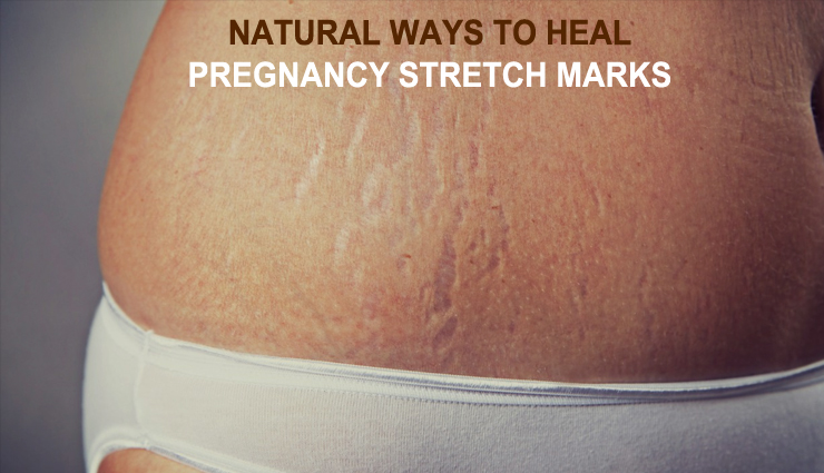 All Natural Ways To Heal The Pregnancy Stretch Marks