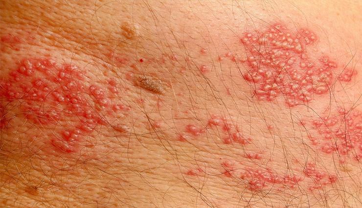 skin infection,skin problems,monsoon problems,allergies,rashes,tips to treat skin allergies and rashes,monsoon allergies,beauty tips ,बरसात का मौसम, मॉनसून, स्किन इंफेक्शन, स्किन प्रॉब्लम, रैशेज़, ऐलर्जी, खुजली, दाद