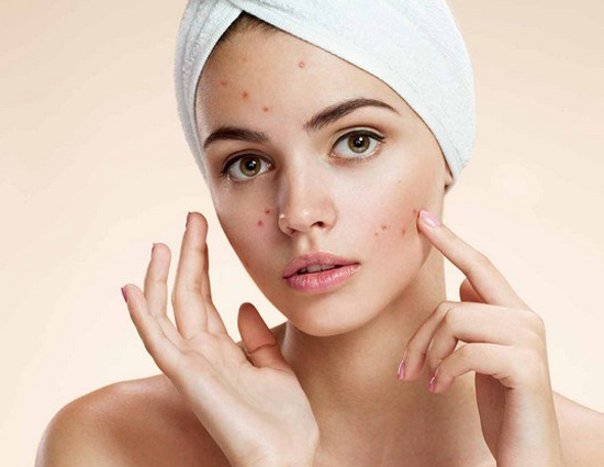 how to remove pimples from face home remedies